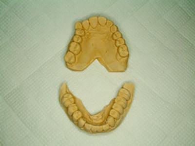 7.歯型模型検査