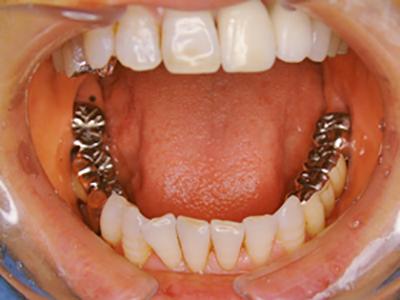 治療前(下顎)