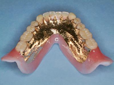 軟性裏装義歯